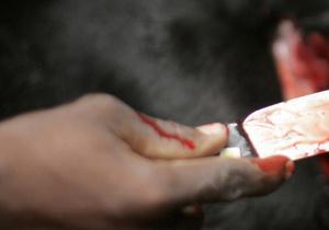 В Миргороде подросток по неосторожности смертельно ранил себя ножом