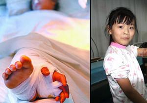 Китайские хирурги сохранили девочке оторванную руку, пришив ее к ноге