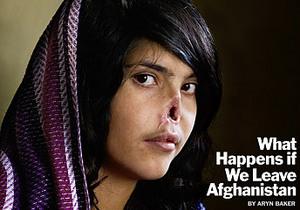 Снимок афганской девушки с отрезанным носом победил на World Press Photo