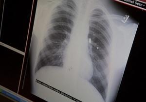 Киевлян приглашают бесплатно сделать рентген легких