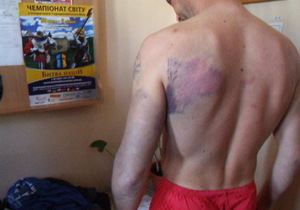 Милиция и прокуратура проверяют, избивали ли черновицкие регионалы людей битами
