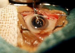 Суд рассмотрит дела против врачей, изымавших роговицу глаз у умерших