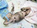 В Лондоне врачи разделили сиамских близнецов, сросшихся головами