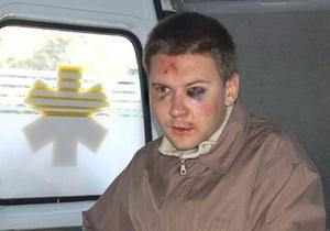 Николаевская милиция назначила вознаграждение за помощь в розыске стрелявшего в журналиста