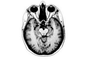 Особлива частина мозку заважає людям зраджувати глибокі переконання