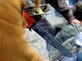 Австралиец с бензопилой потерял палец, защищаясь от вооруженного катаной соседа