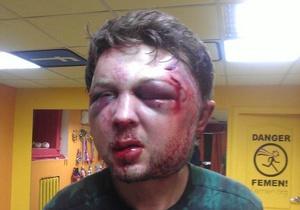 Новости Киева - Святского избили в центре Киева