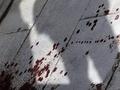 Вдова убитого в Абхазии российского дипломата скончалась в больнице