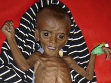 ВОЗ: Ежедневно голод уносит жизни 24 тысяч человек