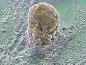...о результатах лечения стволовыми клетками.